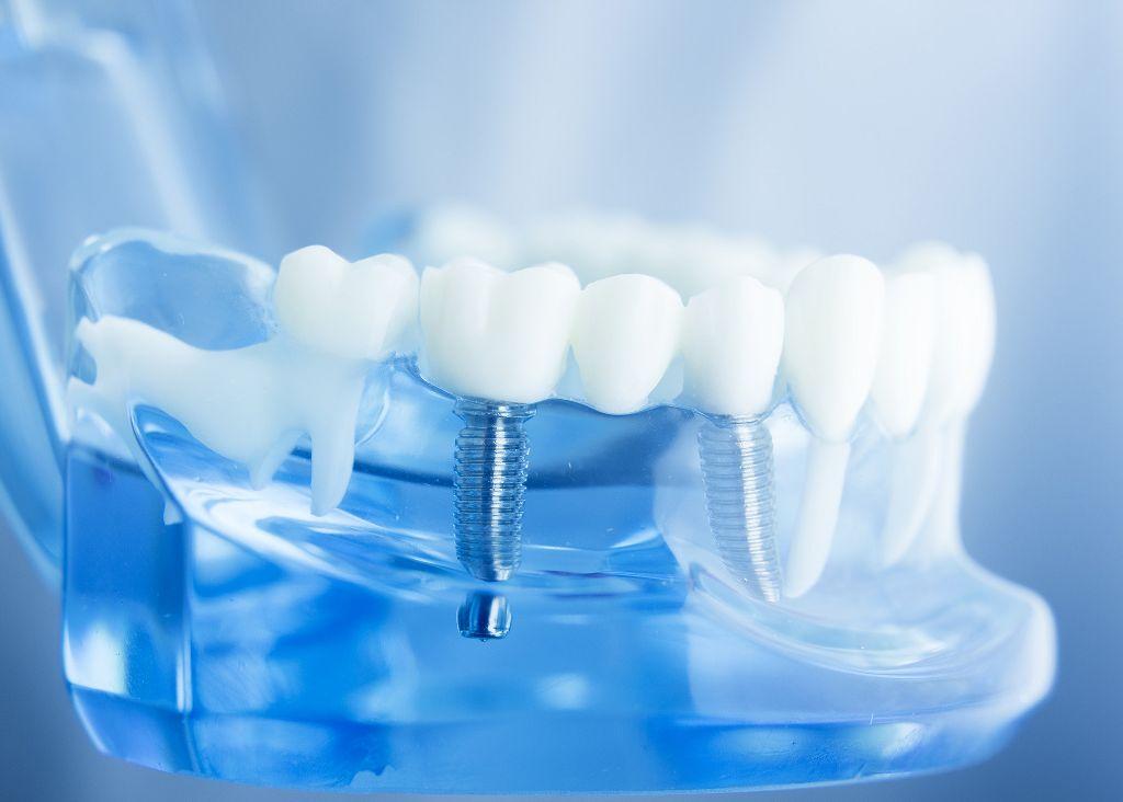 Maribor zobni implantati-dentalni center Amber